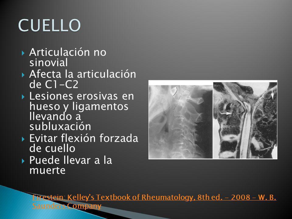 Articulación no sinovial Afecta la articulación de C1-C2 Lesiones erosivas en hueso y ligamentos llevando a subluxación Evitar flexión forzada de cuel