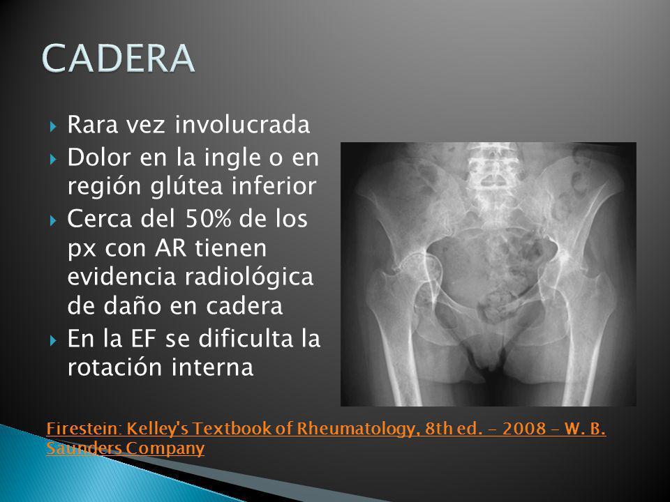 Rara vez involucrada Dolor en la ingle o en región glútea inferior Cerca del 50% de los px con AR tienen evidencia radiológica de daño en cadera En la