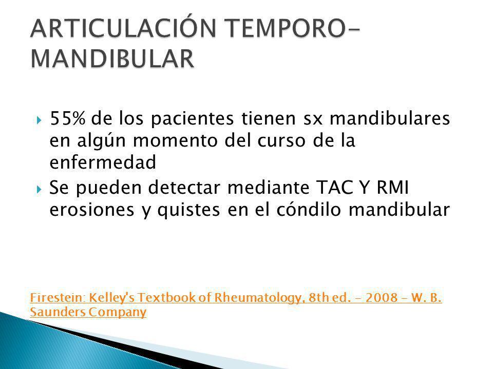 55% de los pacientes tienen sx mandibulares en algún momento del curso de la enfermedad Se pueden detectar mediante TAC Y RMI erosiones y quistes en e