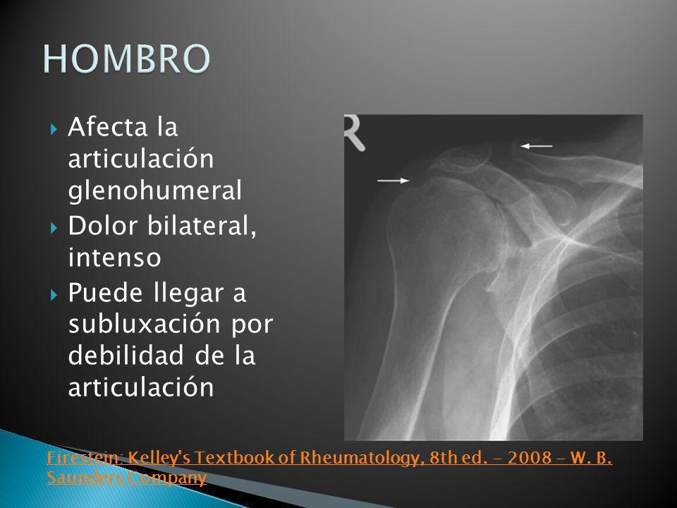 Afecta la articulación glenohumeral Dolor bilateral, intenso Puede llegar a subluxación por debilidad de la articulación Firestein: Kelley's Textbook