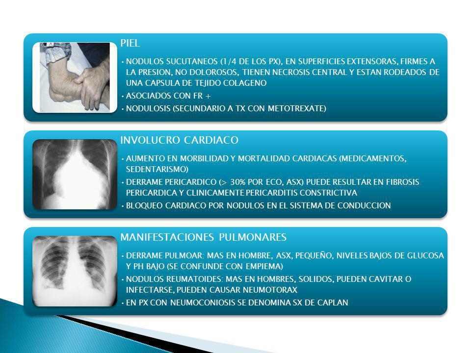 PIEL NODULOS SUCUTANEOS (1/4 DE LOS PX), EN SUPERFICIES EXTENSORAS, FIRMES A LA PRESION, NO DOLOROSOS, TIENEN NECROSIS CENTRAL Y ESTAN RODEADOS DE UNA