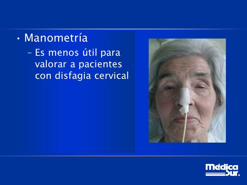 Manometría –Es menos útil para valorar a pacientes con disfagia cervical