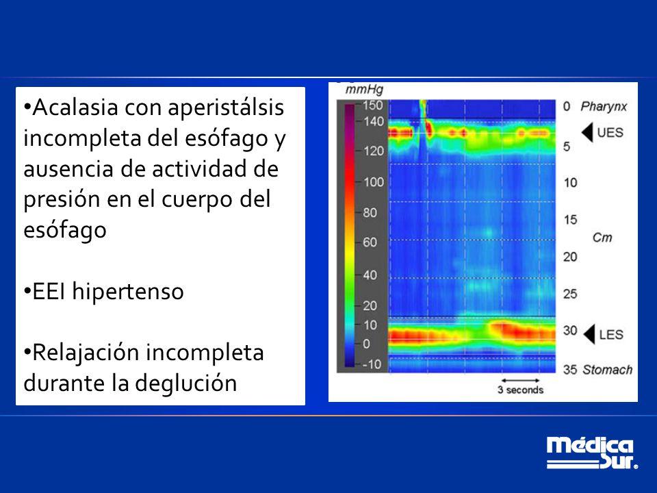Acalasia con aperistálsis incompleta del esófago y ausencia de actividad de presión en el cuerpo del esófago EEI hipertenso Relajación incompleta durante la deglución
