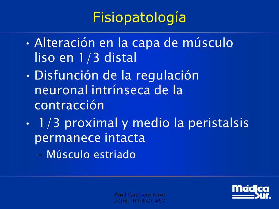 Fisiopatología Alteración en la capa de músculo liso en 1/3 distal Disfunción de la regulación neuronal intrínseca de la contracción 1/3 proximal y medio la peristalsis permanece intacta –Músculo estriado Am J Gastroenterol 2008;103:450–457