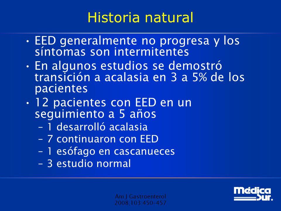 Historia natural EED generalmente no progresa y los síntomas son intermitentes En algunos estudios se demostró transición a acalasia en 3 a 5% de los