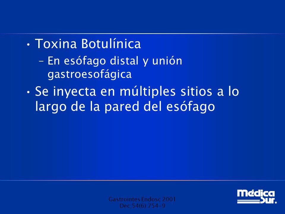 Toxina Botulínica –En esófago distal y unión gastroesofágica Se inyecta en múltiples sitios a lo largo de la pared del esófago Gastrointes Endosc 2001 Dec;54(6):754-9