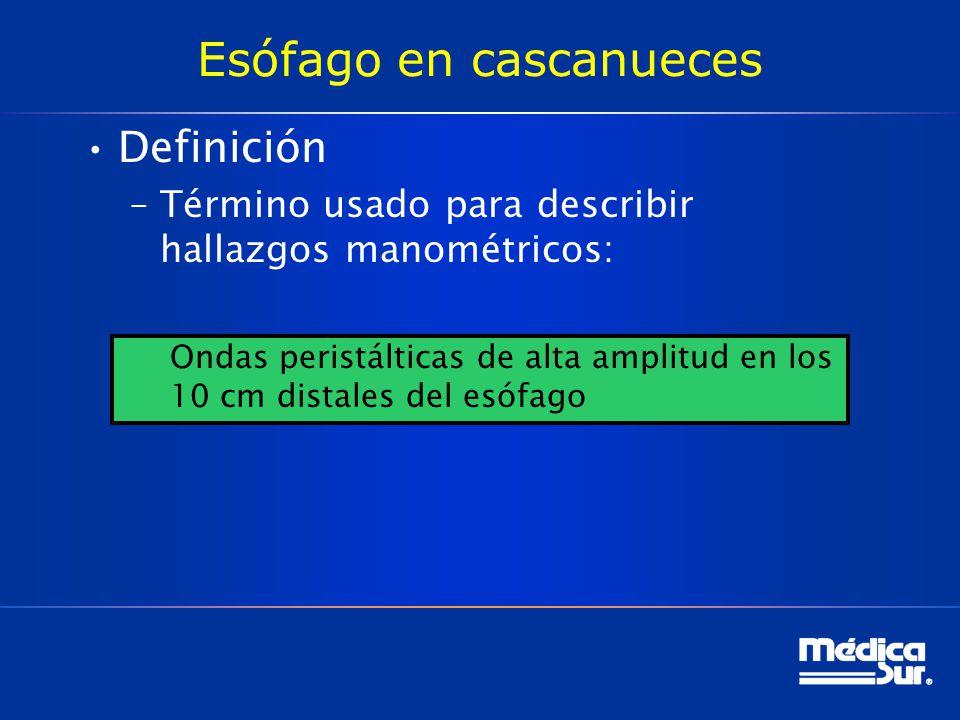 Esófago en cascanueces Definición –Término usado para describir hallazgos manométricos: Ondas peristálticas de alta amplitud en los 10 cm distales del