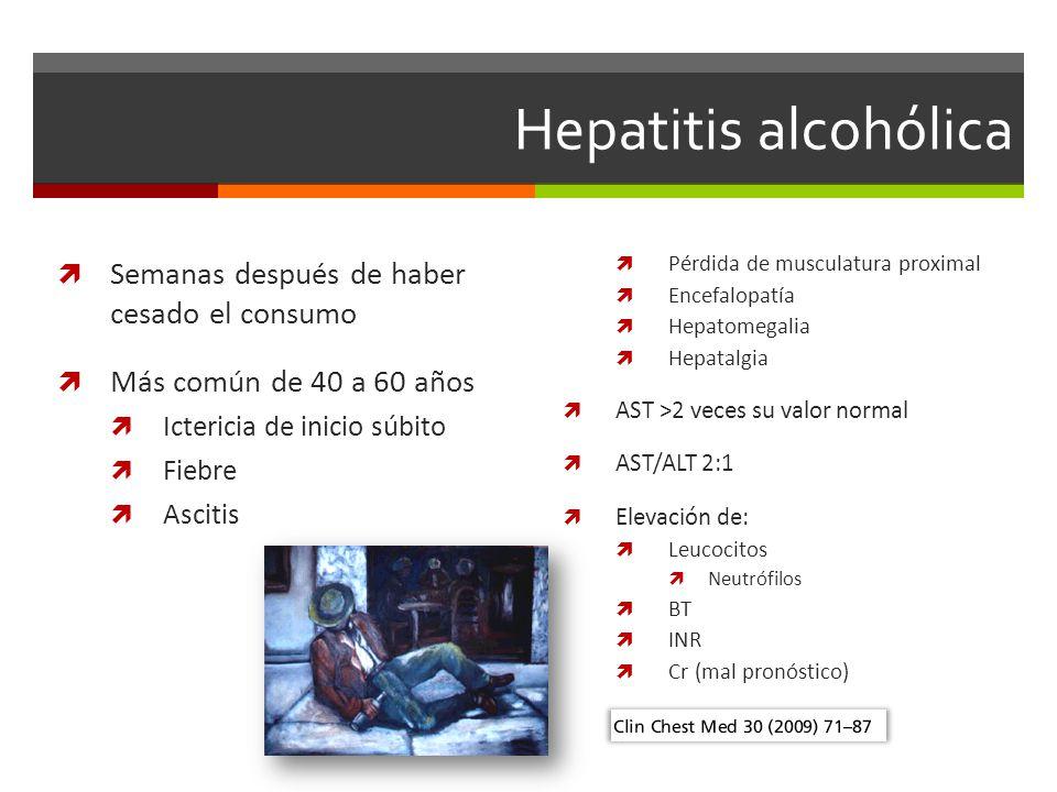 Hepatitis alcohólica Semanas después de haber cesado el consumo Más común de 40 a 60 años Ictericia de inicio súbito Fiebre Ascitis Pérdida de musculatura proximal Encefalopatía Hepatomegalia Hepatalgia AST >2 veces su valor normal AST/ALT 2:1 Elevación de: Leucocitos Neutrófilos BT INR Cr (mal pronóstico)