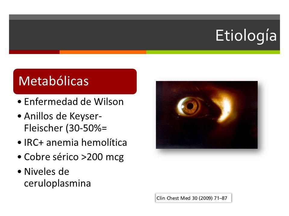 Etiología Metabólicas Enfermedad de Wilson Anillos de Keyser- Fleischer (30-50%= IRC+ anemia hemolítica Cobre sérico >200 mcg Niveles de ceruloplasmina