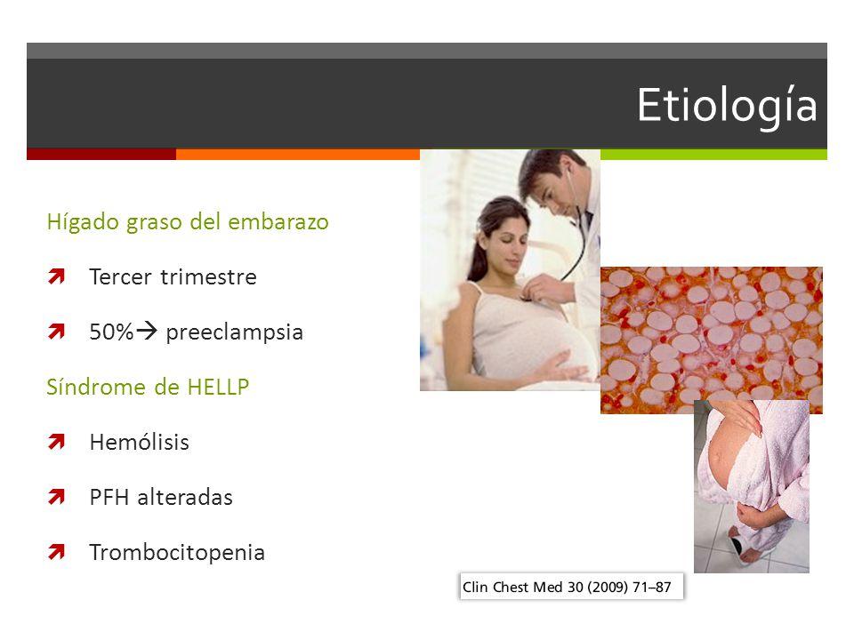Etiología Hígado graso del embarazo Tercer trimestre 50% preeclampsia Síndrome de HELLP Hemólisis PFH alteradas Trombocitopenia
