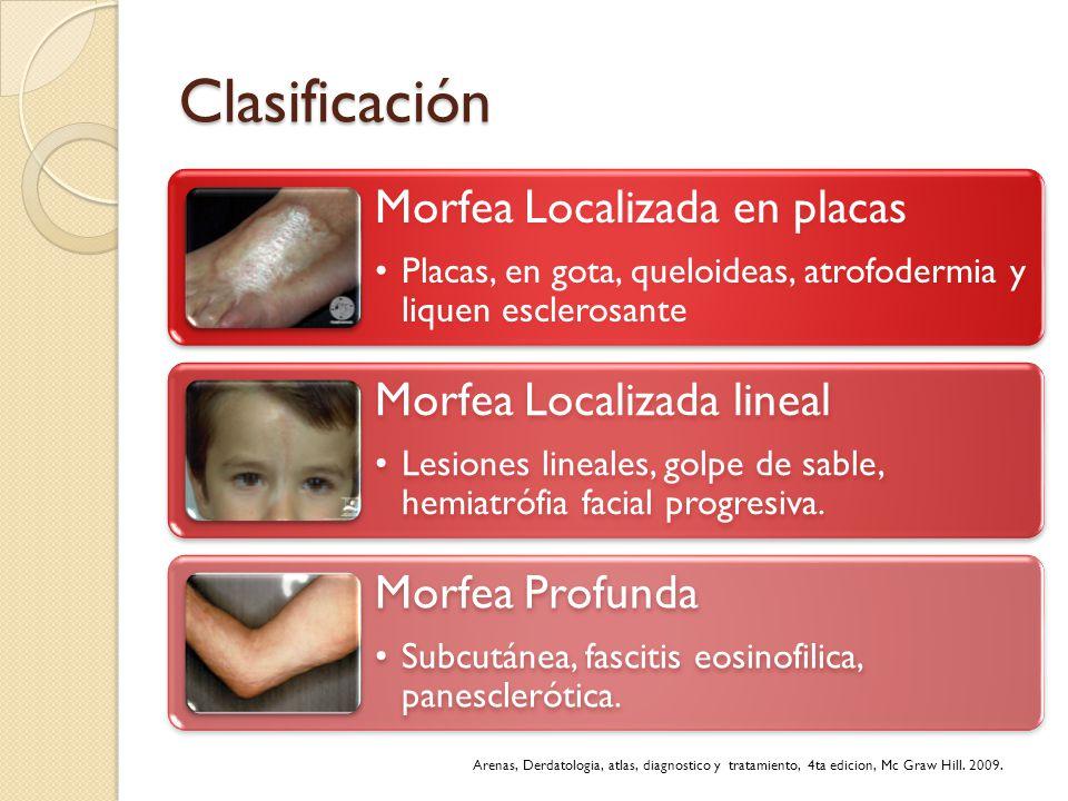 Clasificación Morfea Localizada en placas Placas, en gota, queloideas, atrofodermia y liquen esclerosante Morfea Localizada lineal Lesiones lineales,