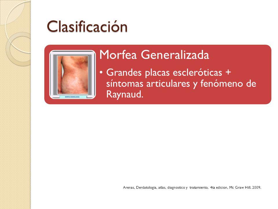 Clasificación Morfea Generalizada Grandes placas escleróticas + síntomas articulares y fenómeno de Raynaud. Arenas, Derdatologia, atlas, diagnostico y