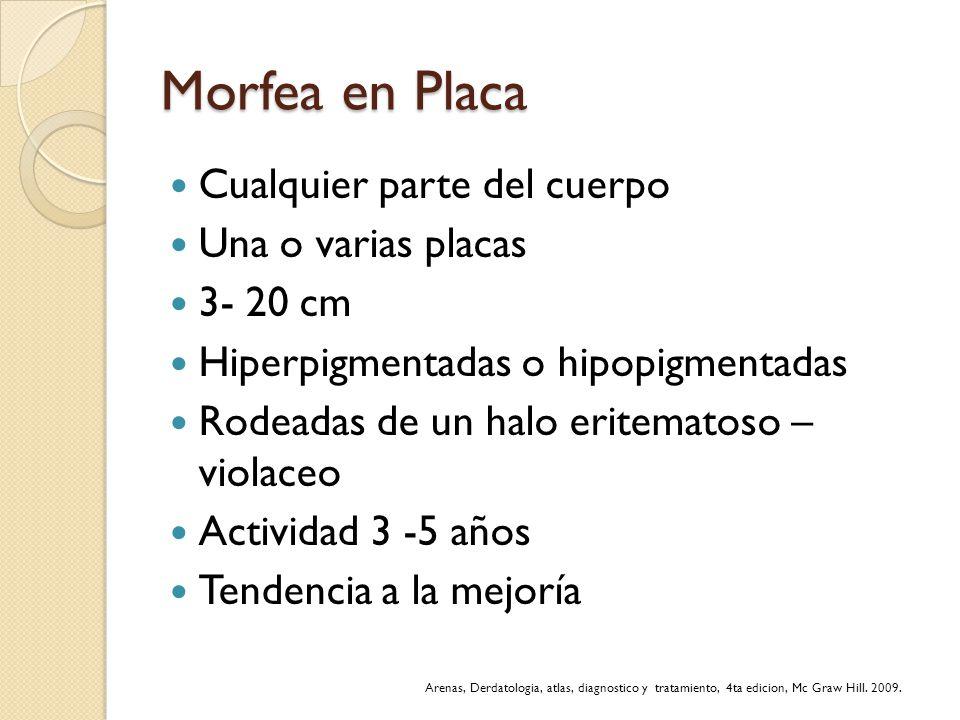 Morfea en Placa Cualquier parte del cuerpo Una o varias placas 3- 20 cm Hiperpigmentadas o hipopigmentadas Rodeadas de un halo eritematoso – violaceo