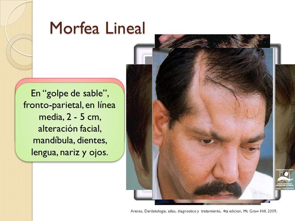 Morfea Lineal Lineal o monomiélica: a lo largo de la extremidad que dificulta su crecimiento. En golpe de sable, fronto-parietal, en línea media, 2 -