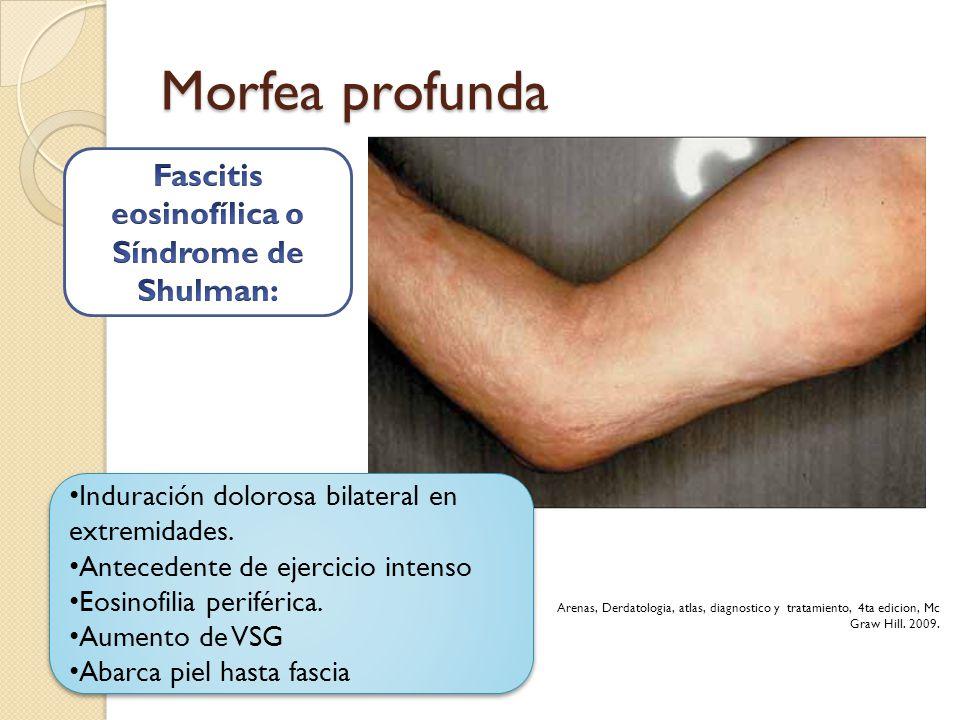 Morfea profunda Induración dolorosa bilateral en extremidades. Antecedente de ejercicio intenso Eosinofilia periférica. Aumento de VSG Abarca piel has