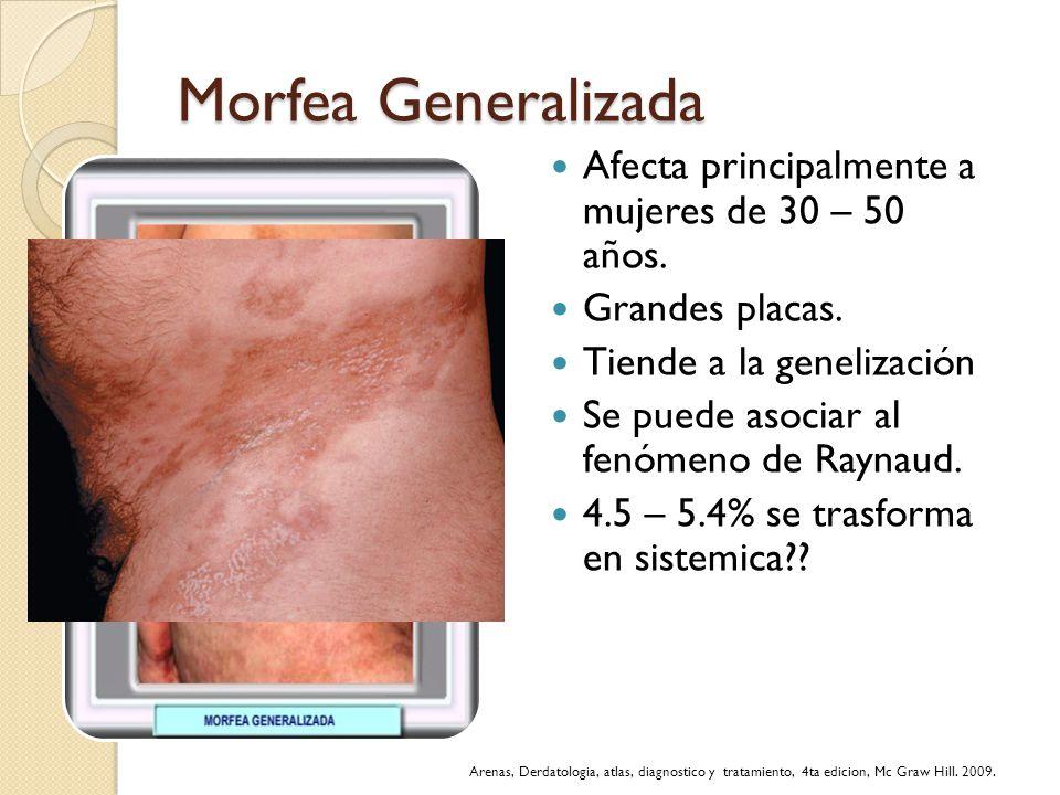Morfea Generalizada Afecta principalmente a mujeres de 30 – 50 años. Grandes placas. Tiende a la genelización Se puede asociar al fenómeno de Raynaud.