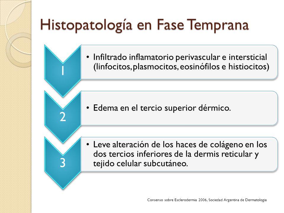 Histopatología en Fase Temprana Consenso sobre Esclerodermia 2006, Sociedad Argentina de Dermatologia 1 Infiltrado inflamatorio perivascular e interst