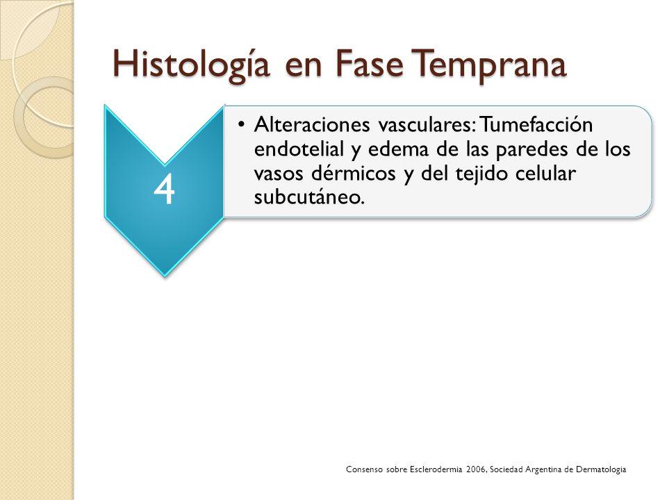 Histología en Fase Temprana 4 Alteraciones vasculares: Tumefacción endotelial y edema de las paredes de los vasos dérmicos y del tejido celular subcut