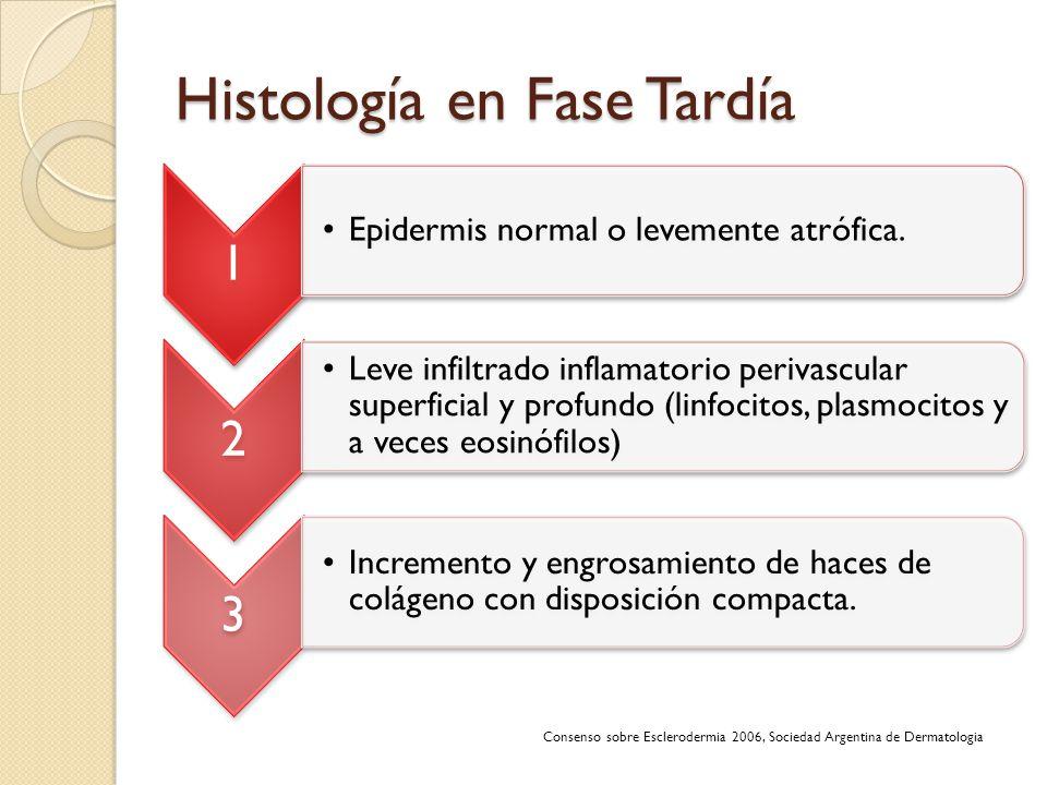 Histología en Fase Tardía 1 Epidermis normal o levemente atrófica. 2 Leve infiltrado inflamatorio perivascular superficial y profundo (linfocitos, pla