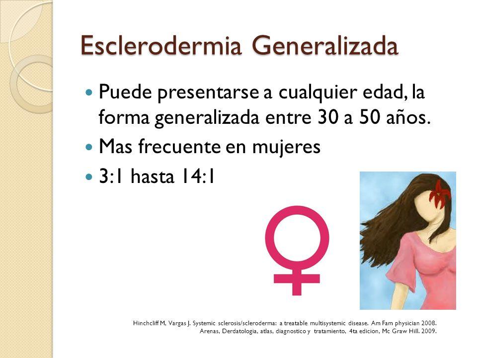 Esclerodermia Generalizada Puede presentarse a cualquier edad, la forma generalizada entre 30 a 50 años. Mas frecuente en mujeres 3:1 hasta 14:1 Hinch