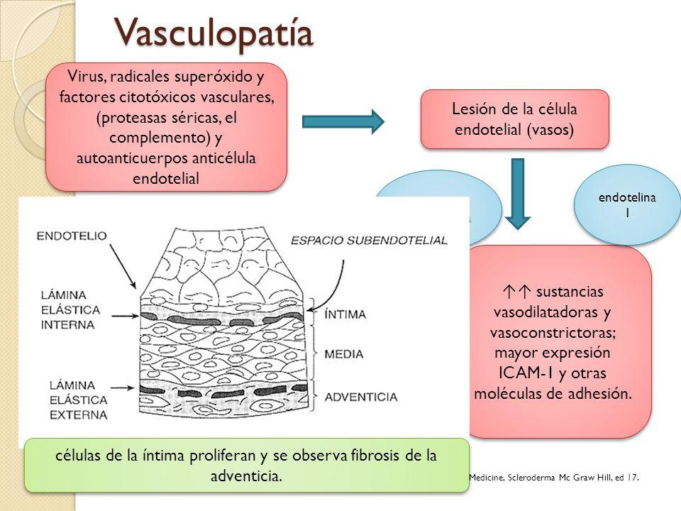 Vasculopatía Virus, radicales superóxido y factores citotóxicos vasculares, (proteasas séricas, el complemento) y autoanticuerpos anticélula endotelia