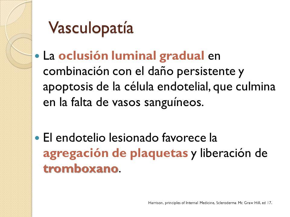 Vasculopatía La oclusión luminal gradual en combinación con el daño persistente y apoptosis de la célula endotelial, que culmina en la falta de vasos