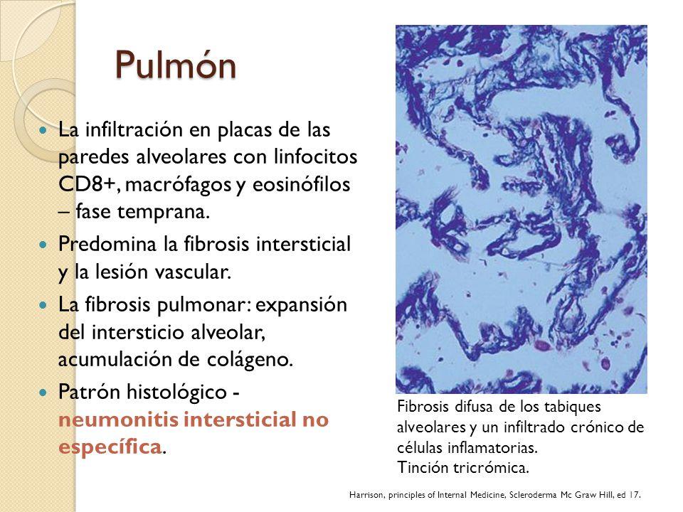 Pulmón La infiltración en placas de las paredes alveolares con linfocitos CD8+, macrófagos y eosinófilos – fase temprana. Predomina la fibrosis inters
