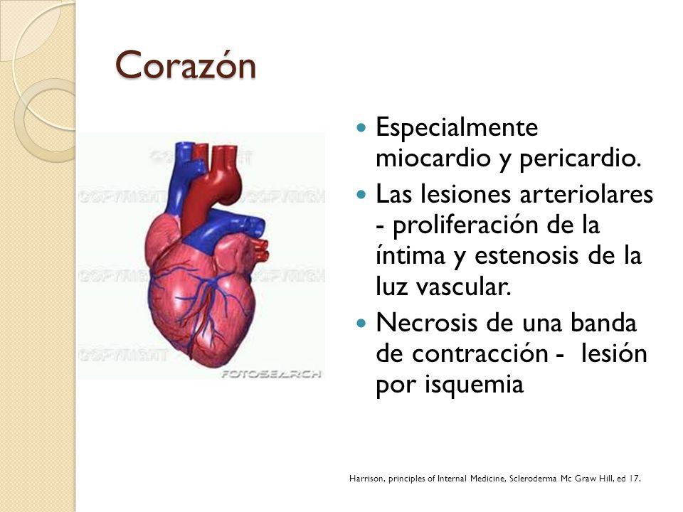 Corazón Especialmente miocardio y pericardio. Las lesiones arteriolares - proliferación de la íntima y estenosis de la luz vascular. Necrosis de una b
