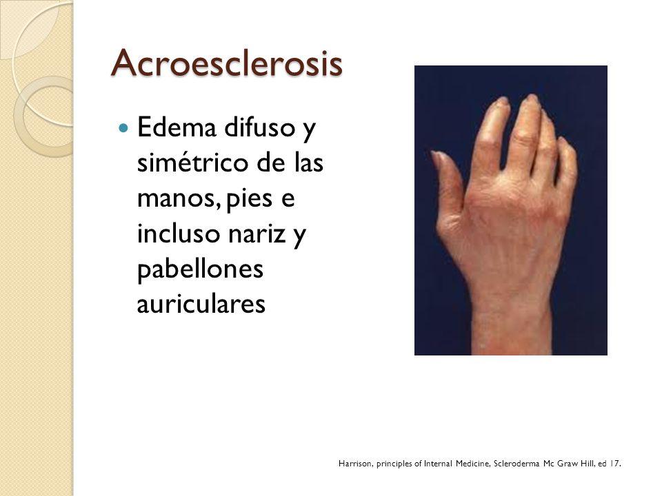 Acroesclerosis Edema difuso y simétrico de las manos, pies e incluso nariz y pabellones auriculares Harrison, principles of Internal Medicine, Sclerod