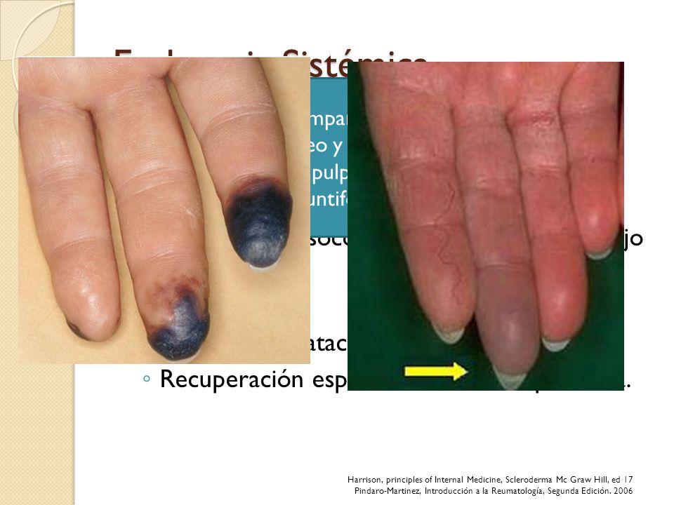 Esclerosis Sistémica Inicia con fenómeno de Raynaud Vasoespasmo paroxístico precipitado por exposición al frío o estrés. Palidez por vasocontricción y