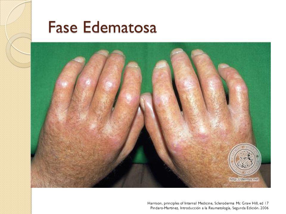 Fase Edematosa Afecta dedos de manos, puede afectar antebrazos, cara, piernas y pies. Poco doloroso, bilateral y simétrico. Forma de Salchichas Dura v