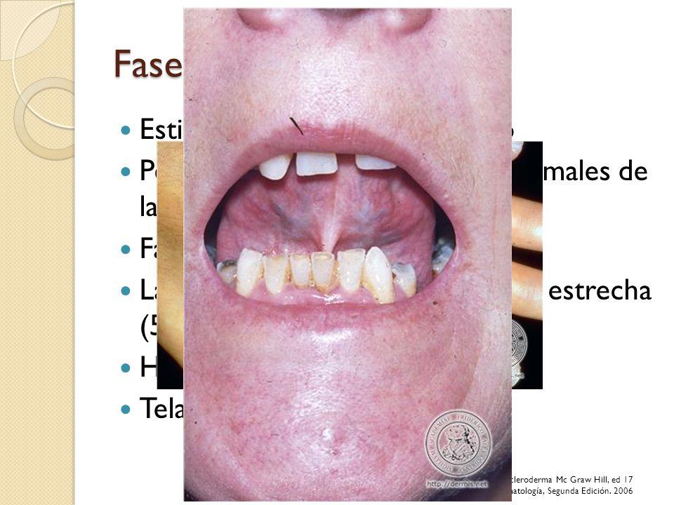 Fase Indurativa Estiramiento y endurecimiento Perdida de arrugas y pliegues normales de la piel Facies inexpresiva Labios adelgazados, abertura oral e