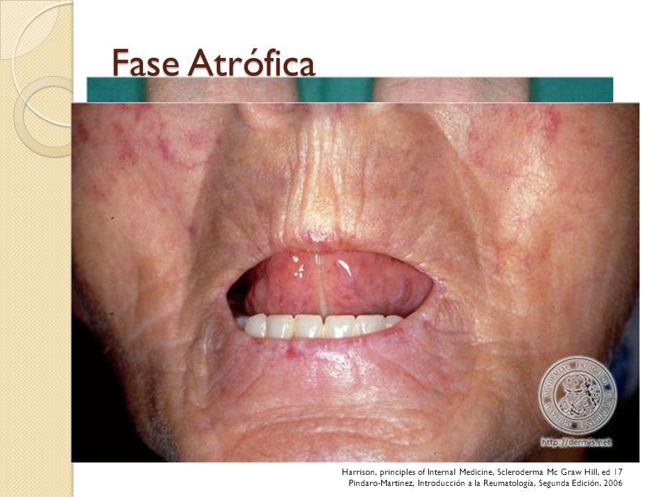 Fase Atrófica Adelgazamiento de la piel, principalmente sobre articulaciones Piel vulnerable a traumatismos – ulceras. Onixorrexis Calcinosis cutanea