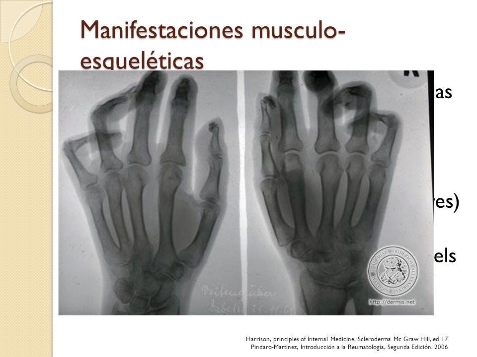 Manifestaciones musculo- esqueléticas Resorción de falanges distales, raro de las medias, radio y cubito. Atrofia muscular por desuso Miopatía primari