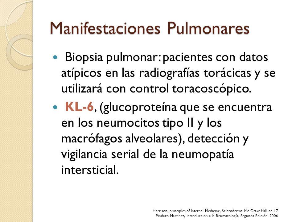 Manifestaciones Pulmonares Biopsia pulmonar: pacientes con datos atípicos en las radiografías torácicas y se utilizará con control toracoscópico. KL-6