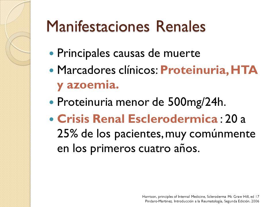 Manifestaciones Renales Principales causas de muerte Marcadores clínicos: Proteinuria, HTA y azoemia. Proteinuria menor de 500mg/24h. Crisis Renal Esc