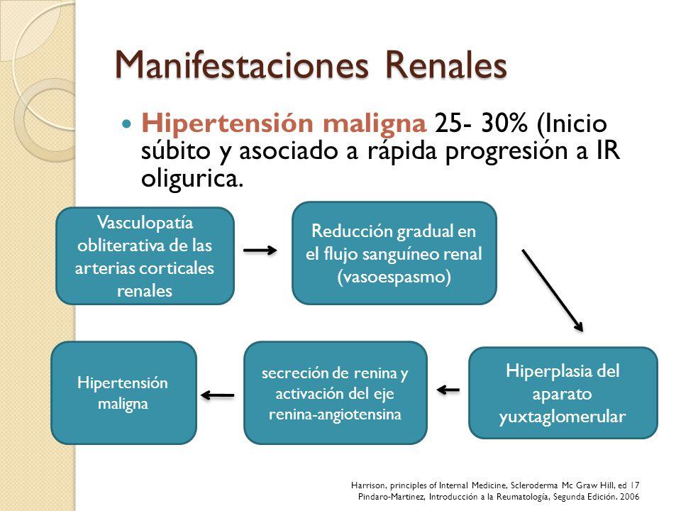Manifestaciones Renales Hipertensión maligna 25- 30% (Inicio súbito y asociado a rápida progresión a IR oligurica. Vasculopatía obliterativa de las ar