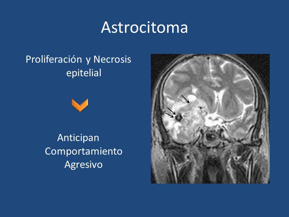Astrocitoma Proliferación y Necrosis epitelial Anticipan Comportamiento Agresivo
