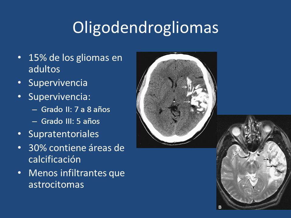 Oligodendrogliomas 15% de los gliomas en adultos Supervivencia Supervivencia: – Grado II: 7 a 8 años – Grado III: 5 años Supratentoriales 30% contiene áreas de calcificación Menos infiltrantes que astrocitomas
