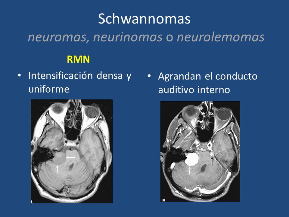 Schwannomas neuromas, neurinomas o neurolemomas RMN Intensificación densa y uniforme Agrandan el conducto auditivo interno