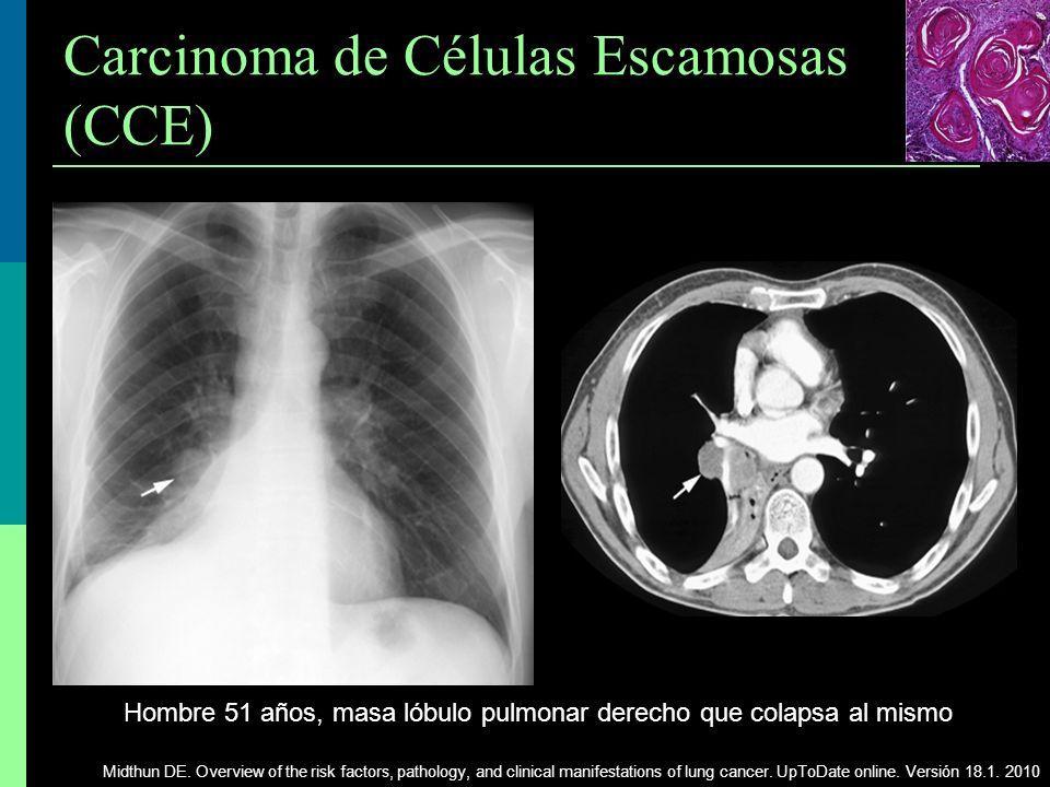Carcinoma de Células Escamosas (CCE) Hombre 51 años, masa lóbulo pulmonar derecho que colapsa al mismo Midthun DE. Overview of the risk factors, patho