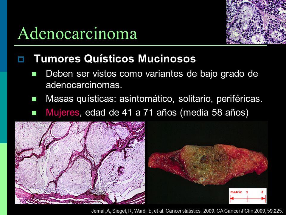 Adenocarcinoma Tumores Quísticos Mucinosos Deben ser vistos como variantes de bajo grado de adenocarcinomas. Masas quísticas: asintomático, solitario,