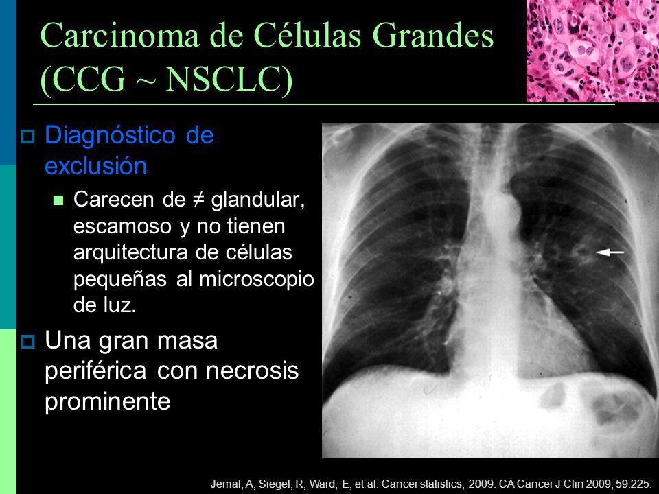 Carcinoma de Células Grandes (CCG ~ NSCLC) Diagnóstico de exclusión Carecen de glandular, escamoso y no tienen arquitectura de células pequeñas al mic