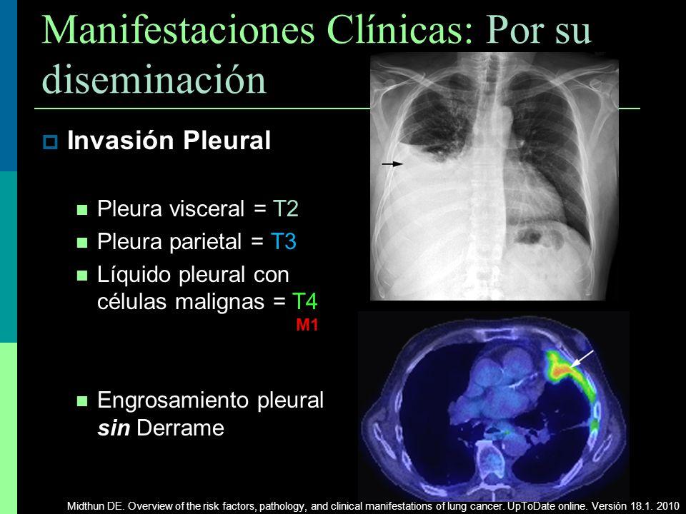 Manifestaciones Clínicas: Por su diseminación Invasión Pleural Pleura visceral = T2 Pleura parietal = T3 Líquido pleural con células malignas = T4 Eng