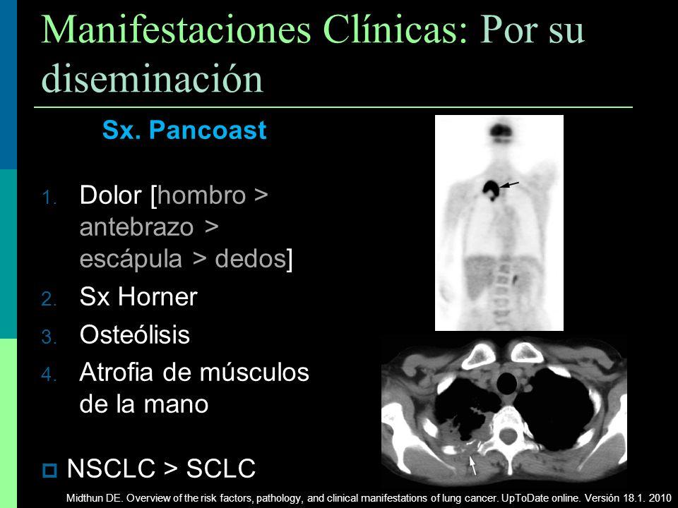 Manifestaciones Clínicas: Por su diseminación Sx. Pancoast 1. Dolor [hombro > antebrazo > escápula > dedos] 2. Sx Horner 3. Osteólisis 4. Atrofia de m