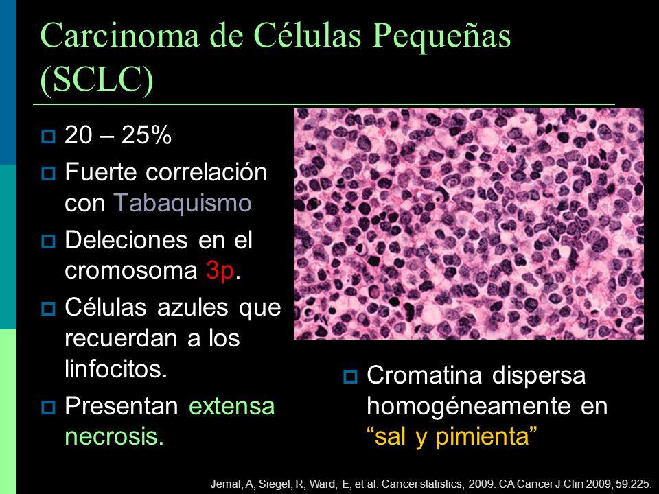 Carcinoma de Células Pequeñas (SCLC) 20 – 25% Fuerte correlación con Tabaquismo Deleciones en el cromosoma 3p. Células azules que recuerdan a los linf
