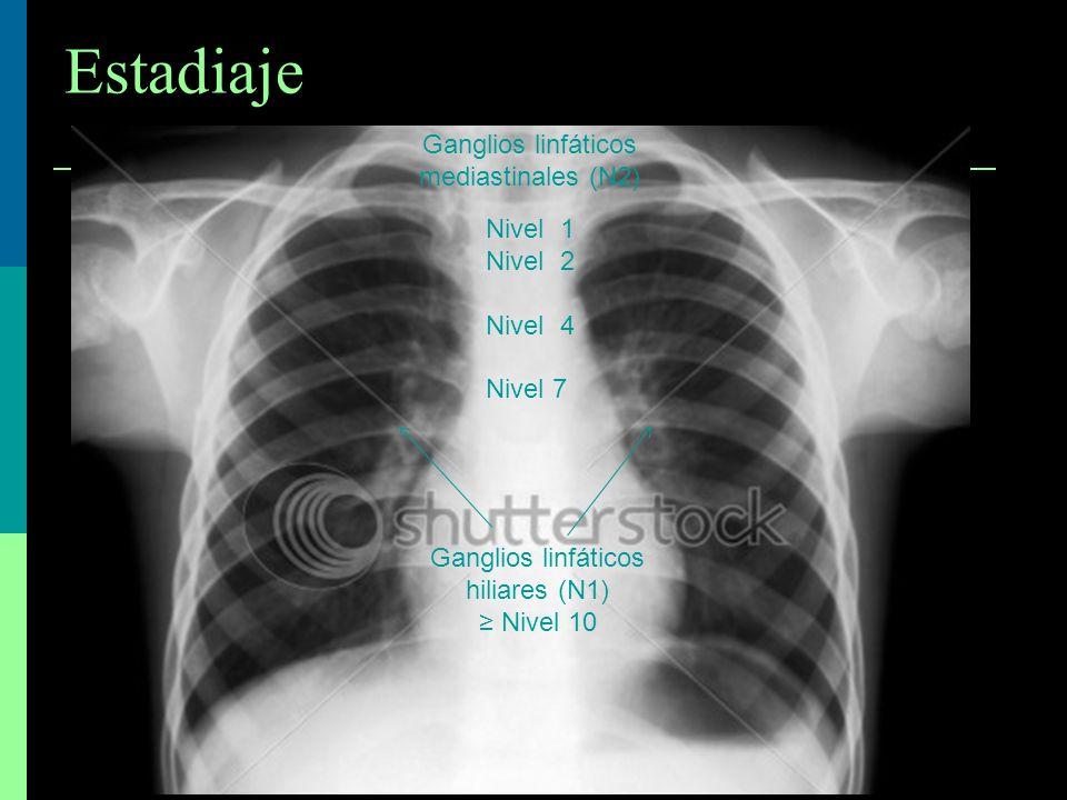 Ganglios linfáticos mediastinales (N2) Nivel 1 Nivel 2 Nivel 4 Nivel 7 Ganglios linfáticos hiliares (N1) Nivel 10 Estadiaje