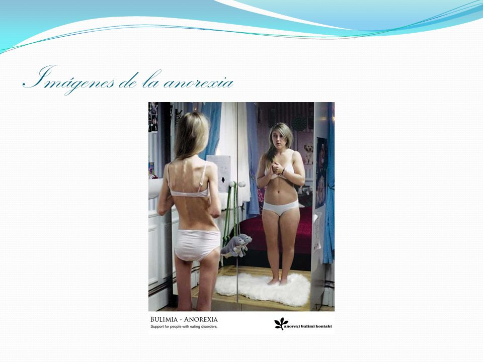 Imágenes de la anorexia