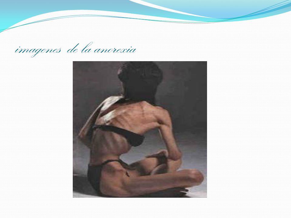 imagenes de la anorexia