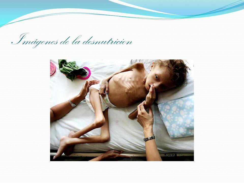 Imágenes de la desnutricion
